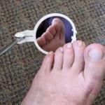 perawatan kaki penderita diabetes